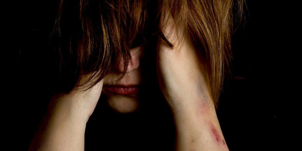 Jente som skjuler ansiktet med hår, skader på armen.